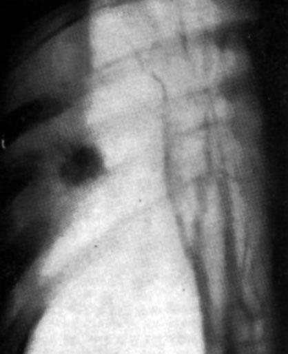 Периферический рак легкого (Структура) .
