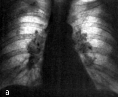 Лечение дисбактериоза у взрослых.  Гланды фото.