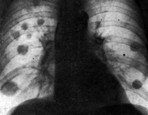 Обзорные рентгенограммы.