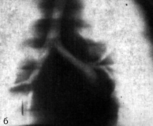 лимфатические узлы средостения фото