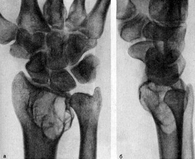 Остеобластокластома (ячеистая форма) дистального эпиметафиза лучевой кости