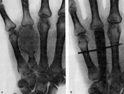 Остеобластокластома (литическая форма) IV пястной кости