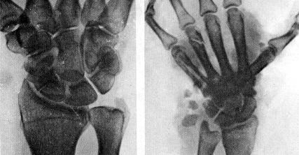 Ложные суставы ладьевидных костей