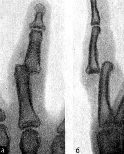 Полный вывих I средней фаланги IV пальца в лучевую сторону, к тылу и проксимально
