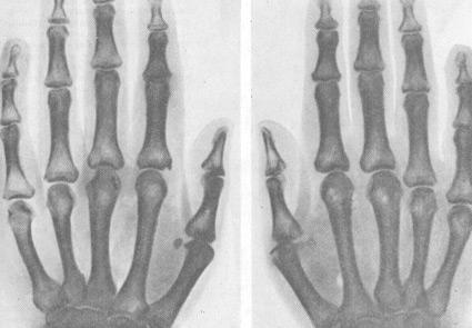 Артрит изкривен пръст