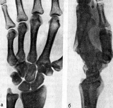 Вывих оснований IV—V пястных костей к тылу
