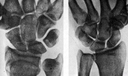 Переломы ладьевидной кости - Мед123.ру