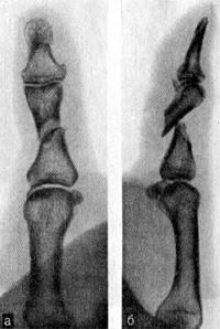 Косой перелом проксимальной фаланги I пальца со смещением отломков под углом, открытым к тылу