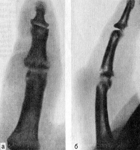 Гнойный артрит проксимального межфалангового сустава II пальца