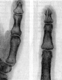 Переломы фаланг пальцев