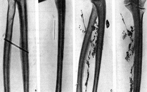 Химический (чернильный) карандаш со сломанным на отточенном конце грифелем в мягких тканях предплечья