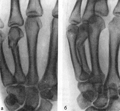 Перелом IV пястной кости в дистальной трети со смещением отломков под углом, открытым в ладонную сторону