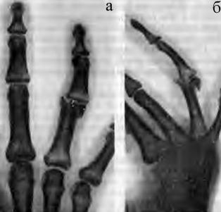 Внутрисуставной перелом головки проксимальной фаланги IV пальца со смещением дистального отломка к тылу, проксимально и в локтевую сторону