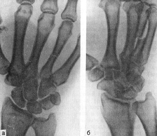 Перелом диафиза IV пястной кости со смещением дистального отломка в ладонную сторону на половину поперечника кости