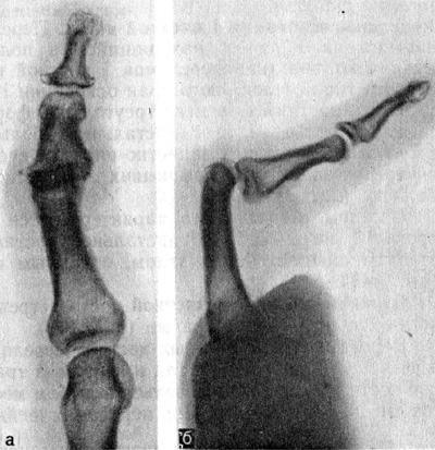 Неполный вывих средней фаланги II пальца
