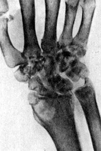 Туберкулез лучезапястного сустава у больного 62 лет
