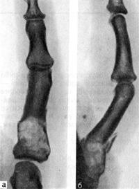 Патологический перелом проксимальной фаланги V пальца