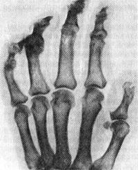 Состояние кисти и пальцев после отморожения