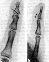 Инородное тело (часть швейной иглы) в мягких тканях ладонной стороны дистальной фаланги