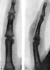 Плоская щепка в мягких тканях тыльной стороны средней фаланги определяется лишь на снимке в боковой проекции