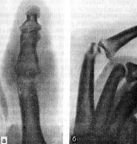 Гнойный артрит проксимального межфалангового сустава III пальца