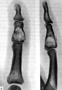 Натологический перелом средней фаланги V пальца на уровне поражения кости энхондромой