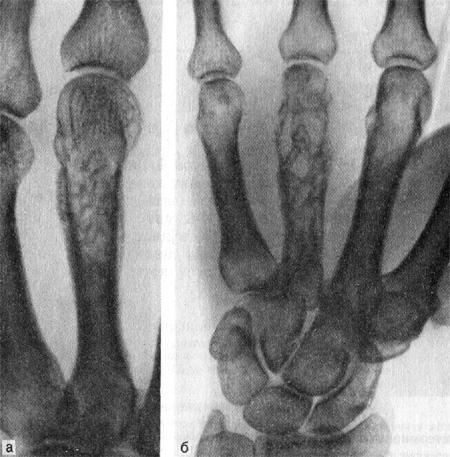 Остеомиелит IV пястной кости (рентгенограмма)