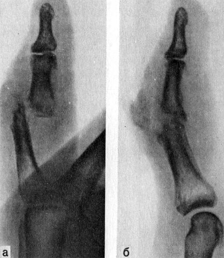 Гнойный артрит проксимального межфалангового сустава V пальца