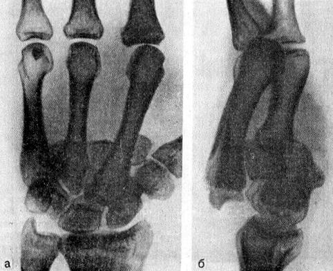 Вывих оснований III—IV—V пястных костей к тылу и проксимально