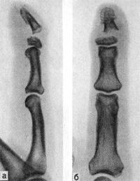 Поперечный перелом дистальной фаланги II пальца со смещением дистального отломка к тылу, в лучевую сторону и под углом, открытым в ладонную сторону