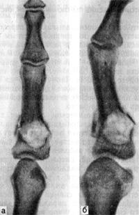 Патологический перелом проксимальной фаланги II пальца