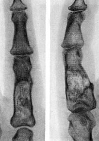 Патологические переломы костей кисти
