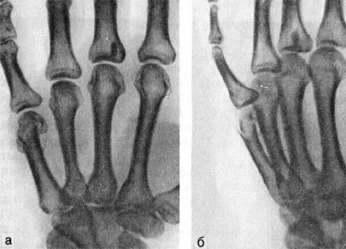 Перелом шейки V пястной кости со смещением отломков под углом, открытым в ладонную сторону
