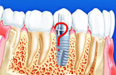 Имплантация зубов за один день