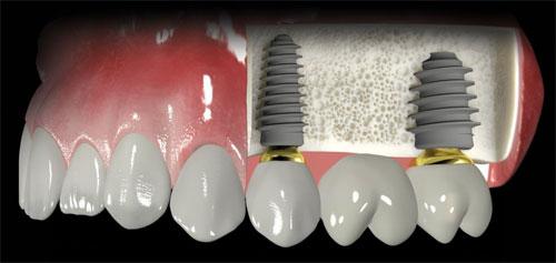 Имплантация зубов: какие материалы используются?