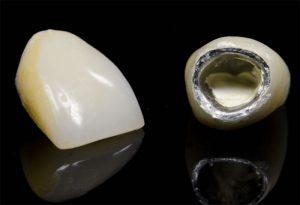 Коронки из металлокерамики