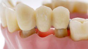 Несъемное протезирование зубов – лучшая эстетика