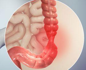 Cиндром раздраженного кишечника