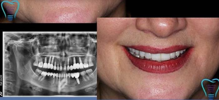 Имплантация зубов в Киеве – доступно и качественно!